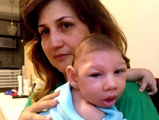 Vi-rút Zika là tác nhân gây ra dị tật đầu nhỏ ở trẻ sơ sinh